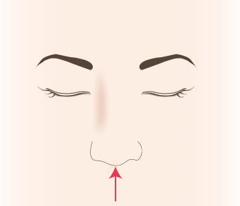鼻中隔延長とは