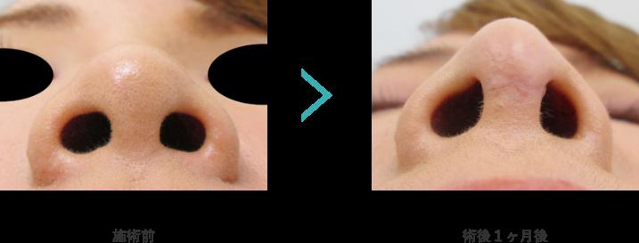 鼻中隔延長