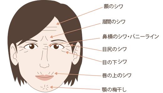 表情ジワへのボトックス(ボツリヌス)注射適応部位