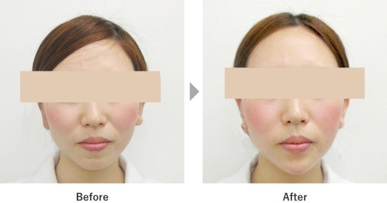 顎の整形ヒアルロン酸注入