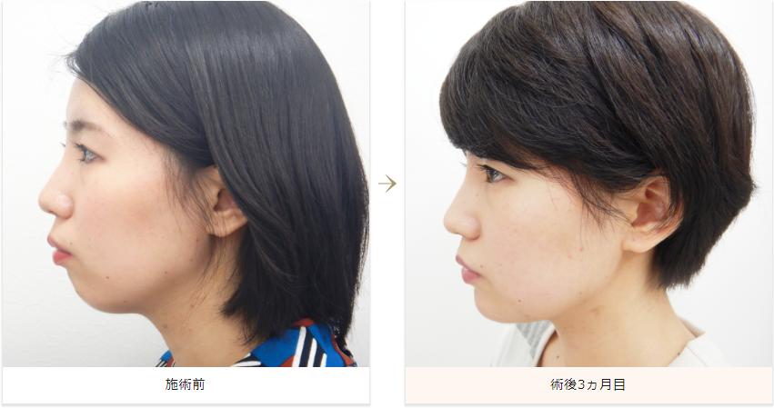 顎プロテーゼ症例写真