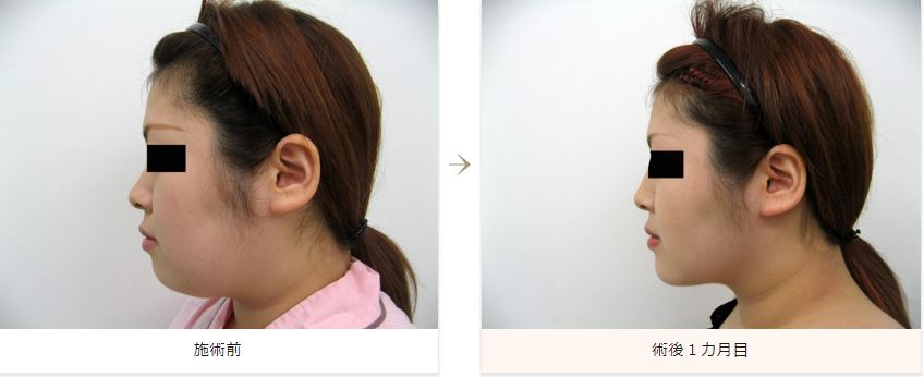 顔の脂肪吸引症例写真