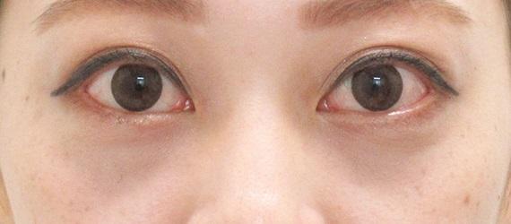 下眼瞼脱脂の症例写真(術後1ヶ月)