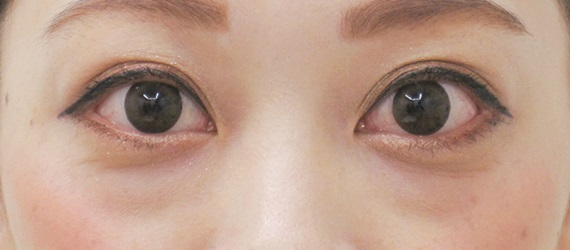 下眼瞼脱脂の症例写真(術前)