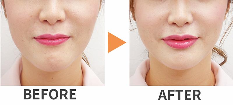唇のヒアルロン酸注入の症例写真
