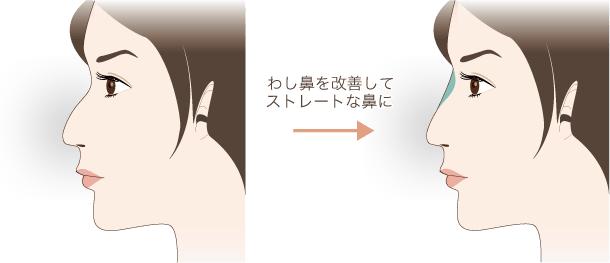 わし鼻の修正も可能