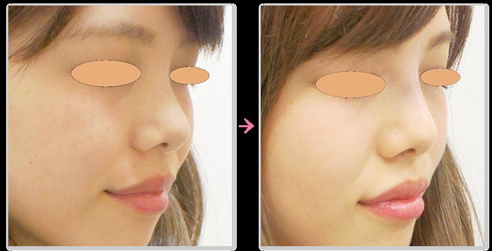鼻のヒアルロン酸注入の症例1