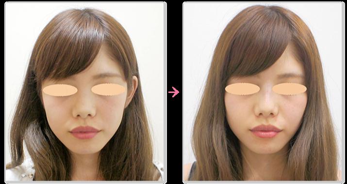 鼻のヒアルロン酸注入の症例2