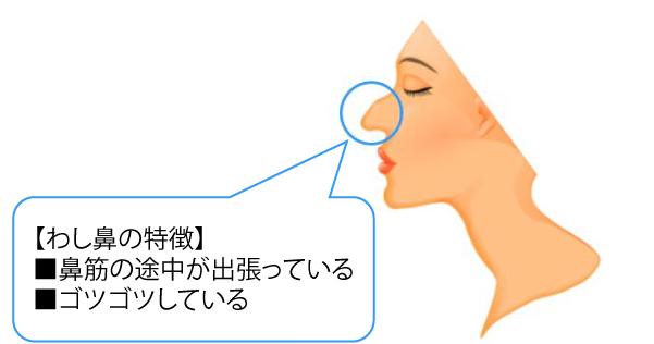 わし鼻とは