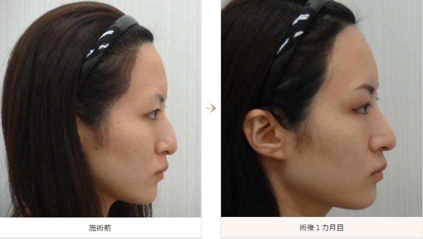 わし鼻修正の症例写真