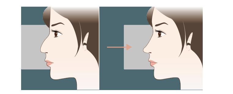 わし鼻修正の効果
