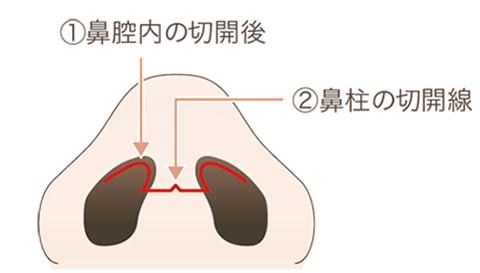①鼻の穴を切開する