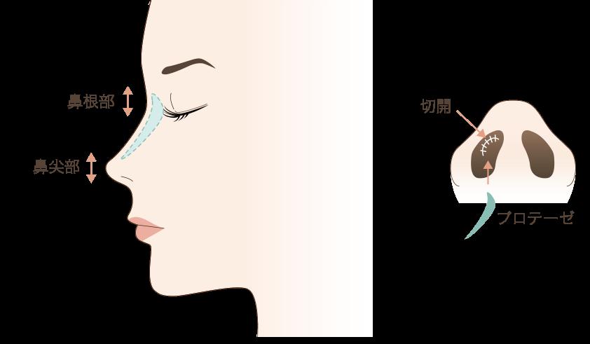 鼻プロテーゼの手術方法