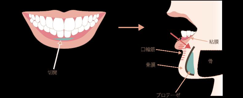 顎プロテーゼの手術方法