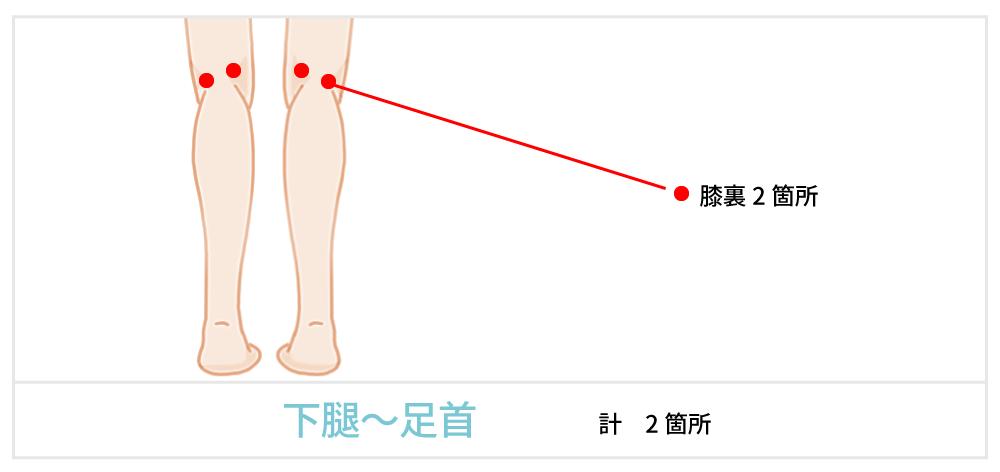 脂肪吸引で傷が出来る箇所の説明 足