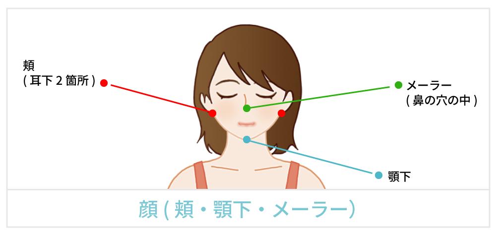 脂肪吸引で傷が出来る箇所の説明 顔