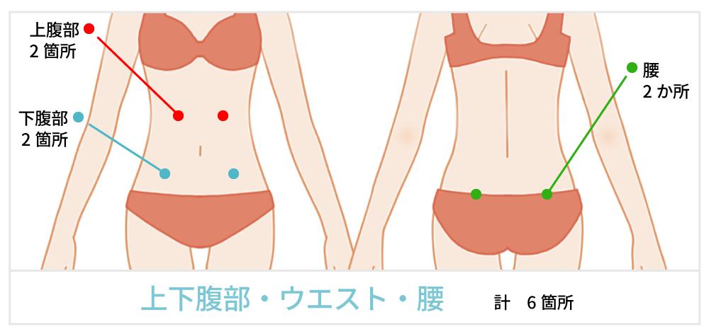 脂肪吸引で傷が出来る箇所の説明 お腹
