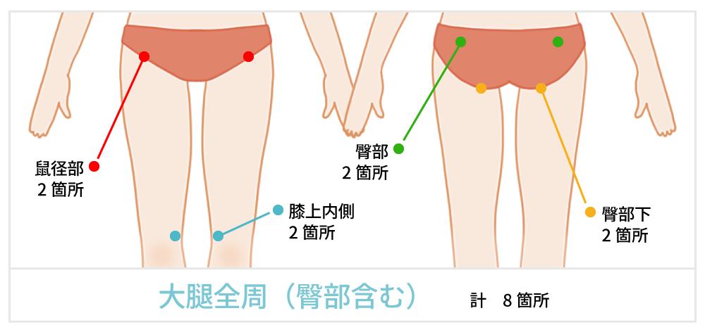 脂肪吸引で傷が出来る箇所の説明 お尻