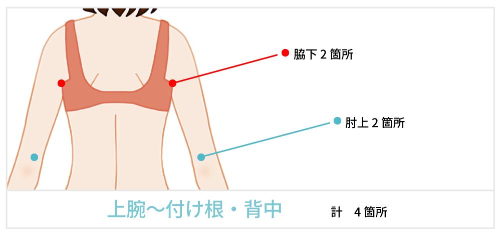 脂肪吸引で傷が出来る箇所の説明 背中