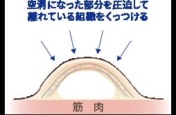 脂肪吸引時に水が溜まってしまうメカニズム2