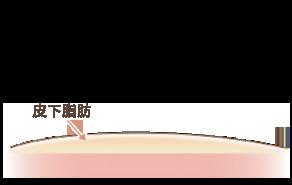 リサーフェイシング法と通常の脂肪吸引との違いの説明