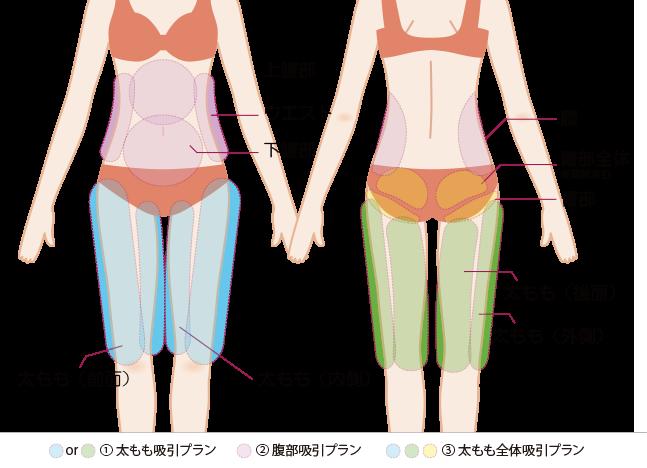 脂肪注入につかう脂肪の吸引箇所の図